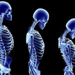 3 skeletons in a row showing different styles of posture
