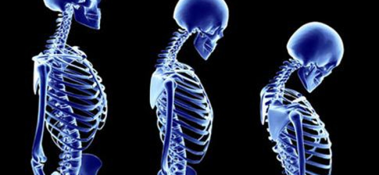 Top 5 things to add to improve your posture (and ultimate health) this year.
